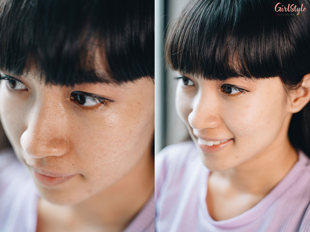 before and after using Shero Ching Firming Facial Mask on skin with enlarged pores