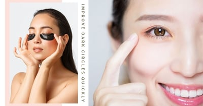 How To Improve Dark Eye Circles Quickly & Effortlessly To Look More Refreshed